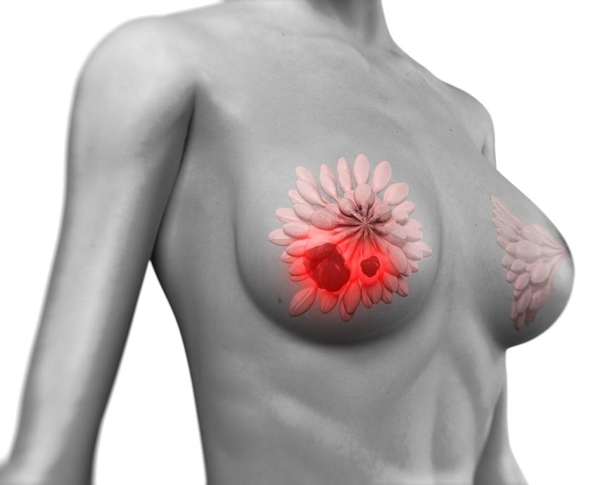 Рак груди 3D