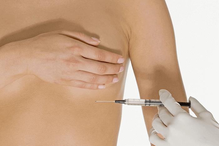Мезотерапия груди