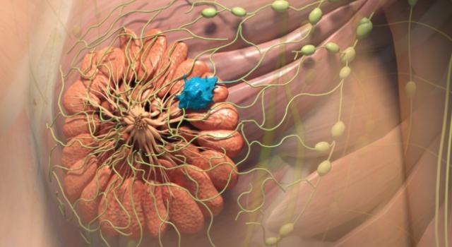 Инвазивная инфильтрационная онкология груди